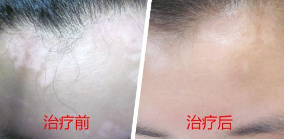 武汉白癜风可以治好吗?女性患上白癜风的原因是什么呢