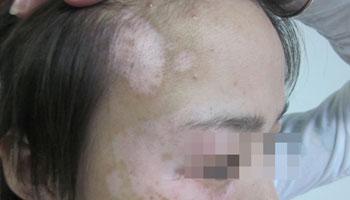 武汉白癜风治疗哪家最好?皮肤有白斑病还能治好吗