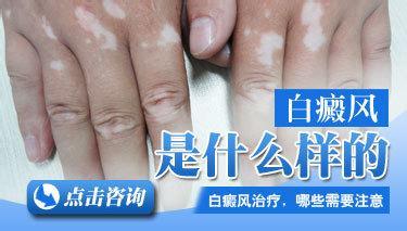 武汉哪里治白斑病好?白癜风的病发症状主要是什么呢?